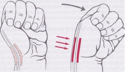 Симптомы : нарушение двигательной активности кисти