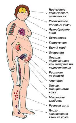 болезнь Иценко Кушинга