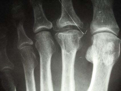 Выявить болезнь Келлера можно с помощью рентгенологического исследования