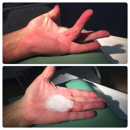 Болезнь Нотта - патология связок и сухожилий пальцев рук