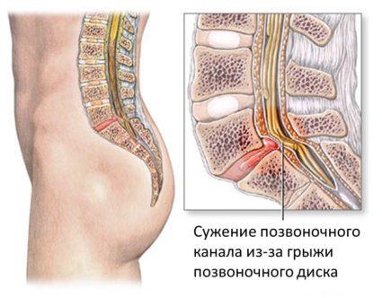 Сужение позвоночного канала происходит из-за грыжи позвоночного диска