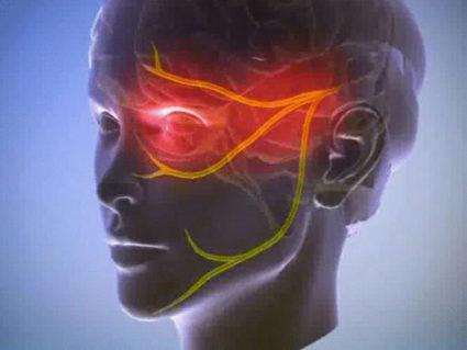 В большей мере виной воспаления нерва становится стоматология