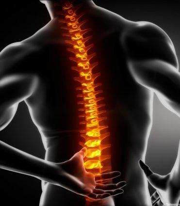 Стеноз развивается в области шеи, груди и поясницы