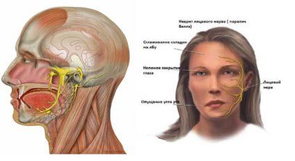 Неврит тройничного нерва: симптомы и лечение процесса