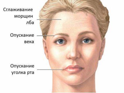 Невропатия на фоне отита дополняется симптомами прострелов в области уха