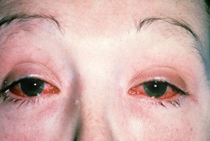 Хламидии являются основной причиной болезни Райтера