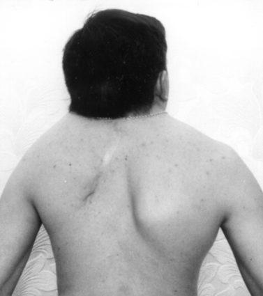 Синдром Клиппеля -Фейля