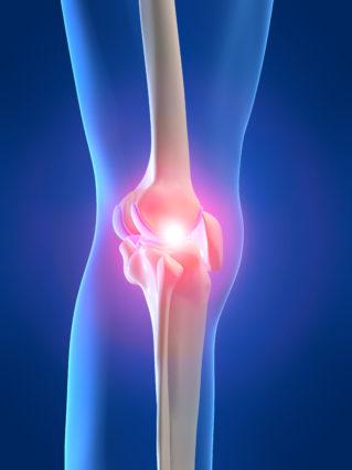 При заболевании ограничивают физические нагрузки на суставы