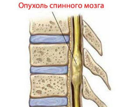 Лечение состоит в хирургическом вмешательстве, в ходе которого опухоль удаляется
