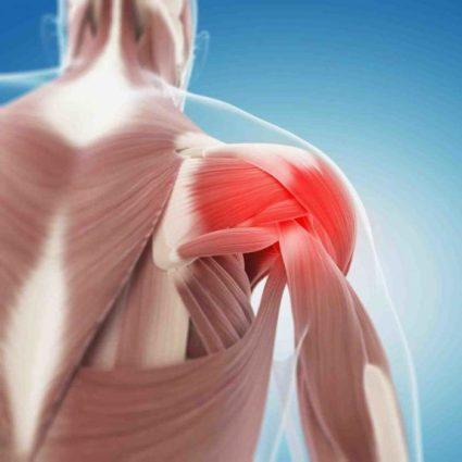 Миофасциальный синдром – триггерная боль в мышцах