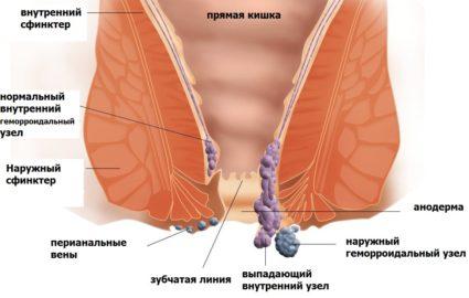 Геморрой также может стать причиной болей в области ягодиц и копчика