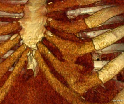 Синдром Титце выявляется не всегда с первого раза