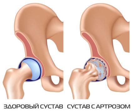 Повреждение плечевого сустава классификация