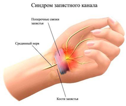 Синдром запястного канала: важно вовремя обратится к врачу