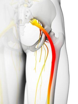 Синдром грушевидной мышцы является последствием остеохондроза