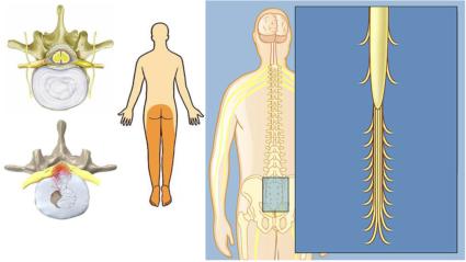 Синдром конского хвоста возникает у мужчин в возрасте от 35 до 40 лет