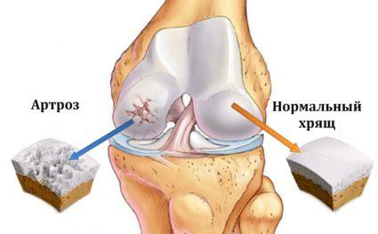 артроз коленных суставов