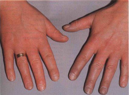 Болезнь Рейно - заболевание поражает конечности