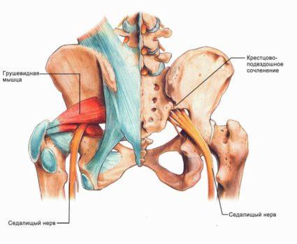 Защемление седалищного нерва вызывает тупые боли, жжение