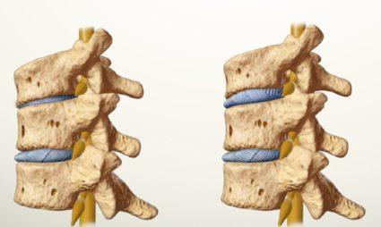 Основной причиной заболевания,является остеохондроз шейных позвонков