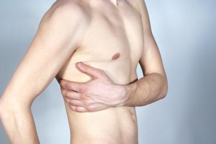 Синдром Титце как причина болей в груди