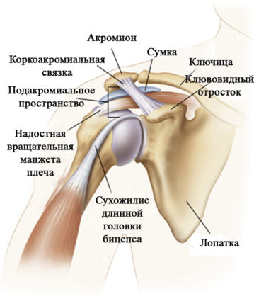 Импиджмент-синдром связан с частыми перегрузками и воспалениями в плече