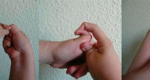 синдром Элерса-Данлоса