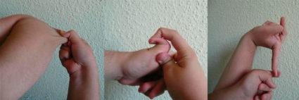Синдром Элерса-Данлоса имеет благоприятный прогноз