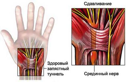 Долгие и однообразные нагрузках на руки,приводят к туннельному синдрому