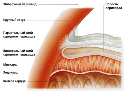 Киста - патологическая полость с содержанием жидкости