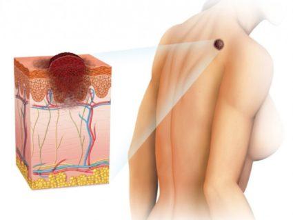 жировики на теле