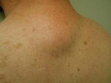 Общий признак спинальных опухолей - острая боль