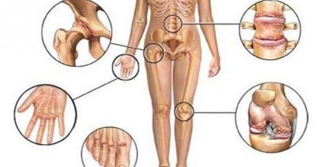 Артритом могут быть повреждены несколько суставов одновременно