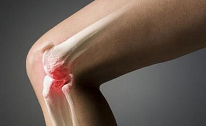 Боли в колене могут быть серьезным заболеванием