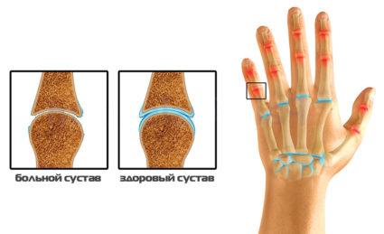 Артроз кистей рук лечение симптомы и фото суставов