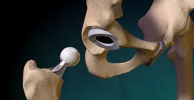 Эндопротезирование тазобедренного сустава из личного опыта надрыв задней крестообразной связки коленного сустава