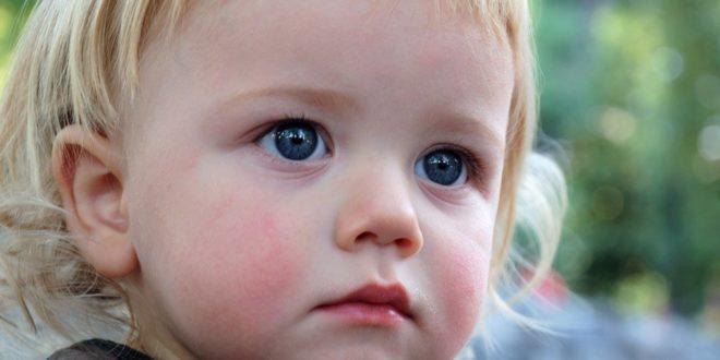 диатез у детей