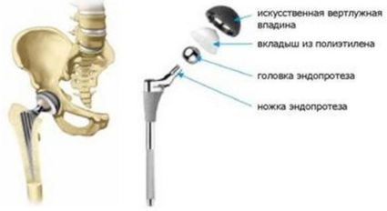 эндопротезирование тазобедренного сустава