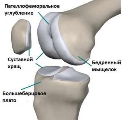пателлофеморальный артроз коленного