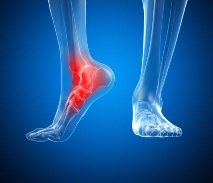 Болит нога сзади - может быть воспаление сухожилия