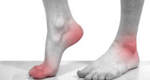 Воспаление суставов может приносить боли