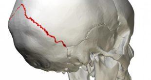По черепу можно определить много о его владельце