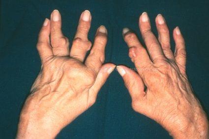 Воспалительные узелки появляются под кожей