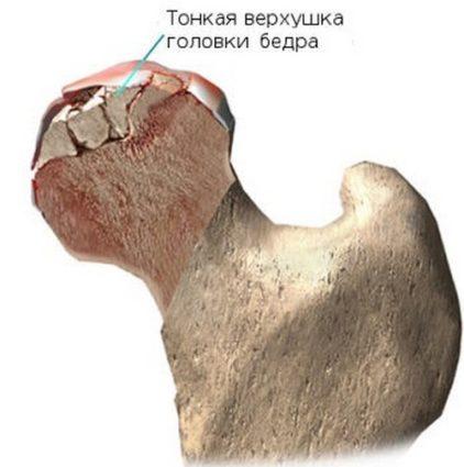 Из за прогрессирующего заболевания происходит деформация кости