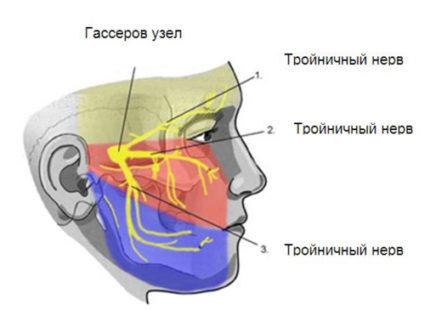 Так как нерв расположен на лице, то проблема имеет и эстетическую проблему