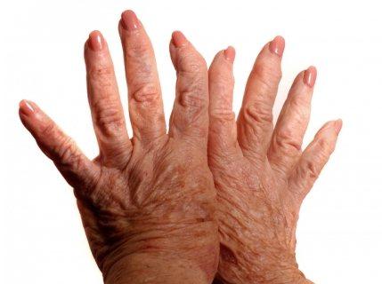С возрастом наблюдается деформация суставов на ногах и руках