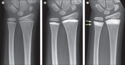 Субхондральный склероз в суставе