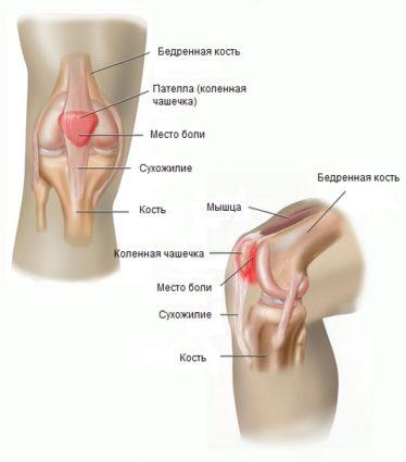 С чего состоит коленный сустав