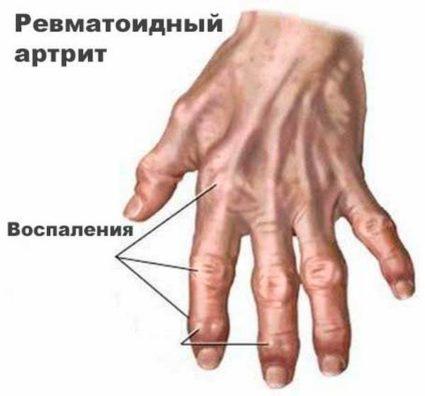 Воспалительные узелки