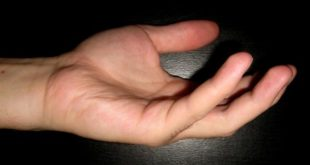 Травма пальца приносит дискомфорт и боль
